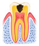 C2:穴が象牙質にまで拡大している状態