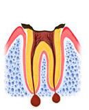 C4:歯の根しか残っていない状態