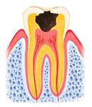 C3:歯がかなり失われている状態