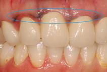 金属イオンが流出し歯茎(歯肉)に沈着してしまった症例